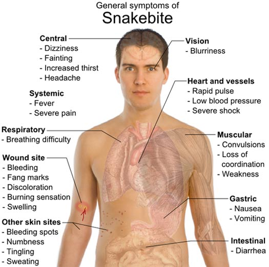 general symptoms of snakebite